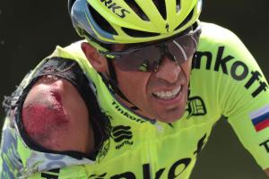 Spain's Alberto Contador, injured after a crash, rides during the 188 km first stage of the 103rd edition of the Tour de France cycling race on July 2 between Mont-Saint-Michel and Utah Beach Sainte-Marie-du-Mont, Normandy